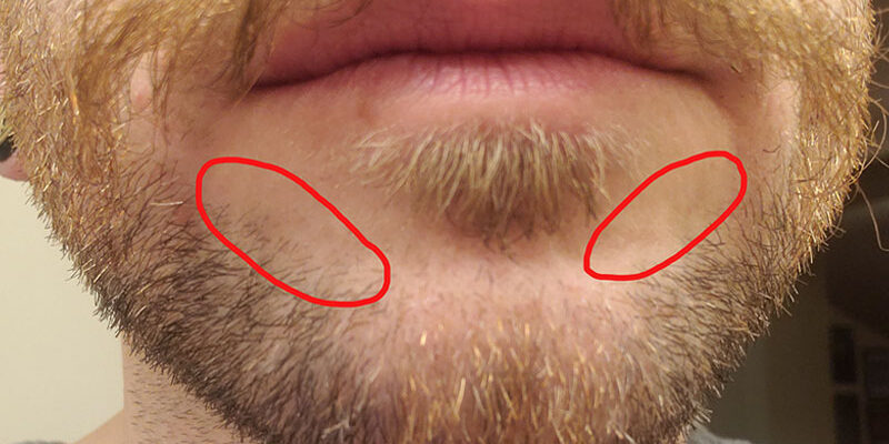 My weird facial hair patches